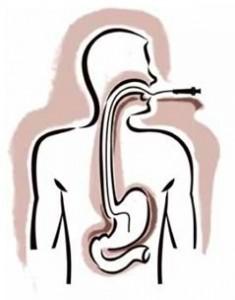 Gastroscopy